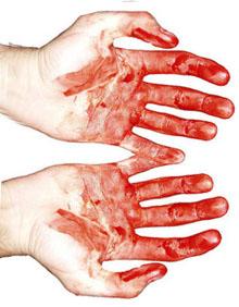 Veriset_kädet